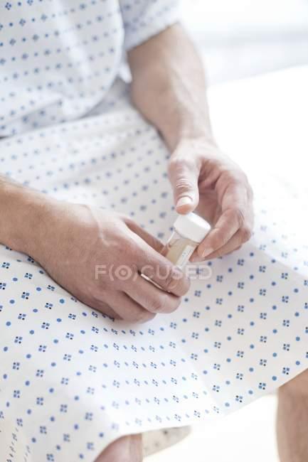 Paciente masculino usando bata de hospital y sentado en la cama con muestra de orina . - foto de stock