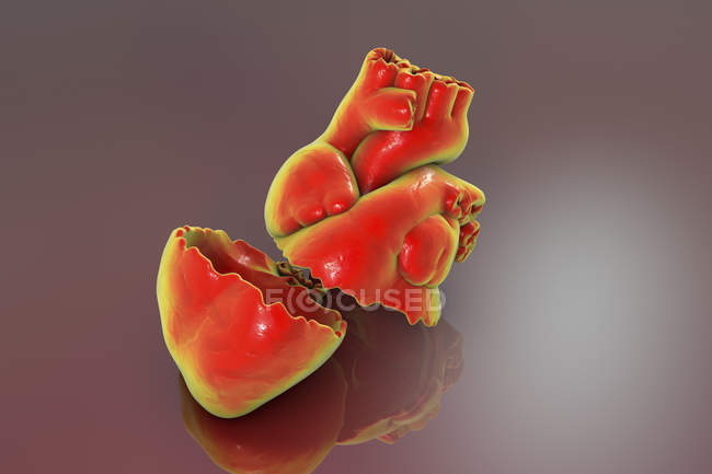 Broken heart model, conceptual illustration. — Stock Photo