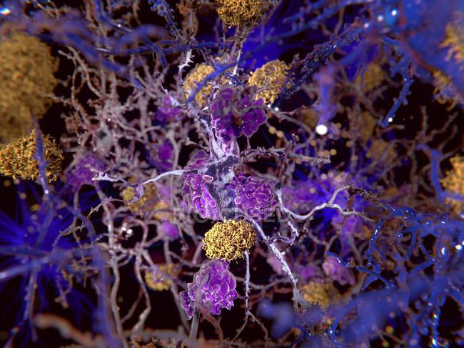 Computerillustration von Amyloid-Plaques (gelb) unter Neuronen. — Stockfoto