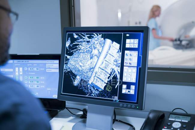 Doctor looking at MRI scans on monitor. — Stock Photo