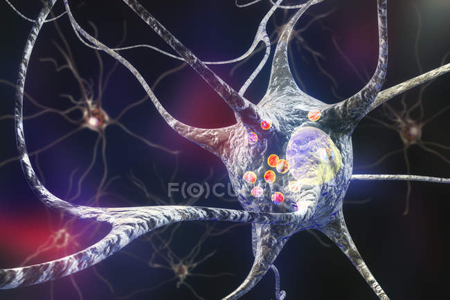 Parkinson disease in nerve cell, digital illustration. — Stock Photo
