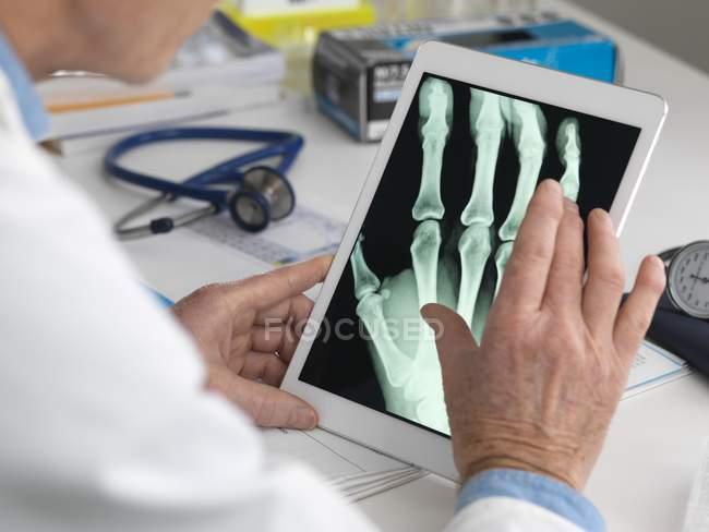 Médico de visualização de raios-X de mão em tablet digital . — Fotografia de Stock