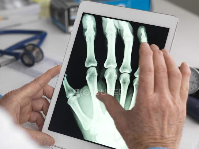 Doctor viewing X-ray of hand on digital tablet. — Stock Photo