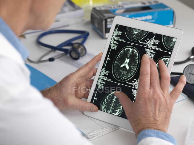 Arzt sieht Gehirnscans auf digitalem Tablet. — Stockfoto