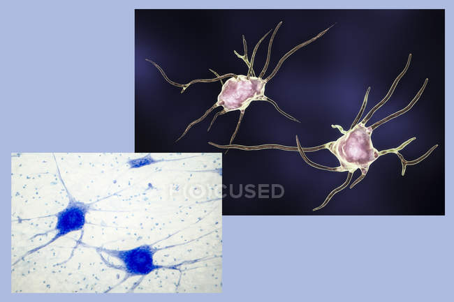 Illustrazione digitale delle cellule nervose neuroni. — Foto stock