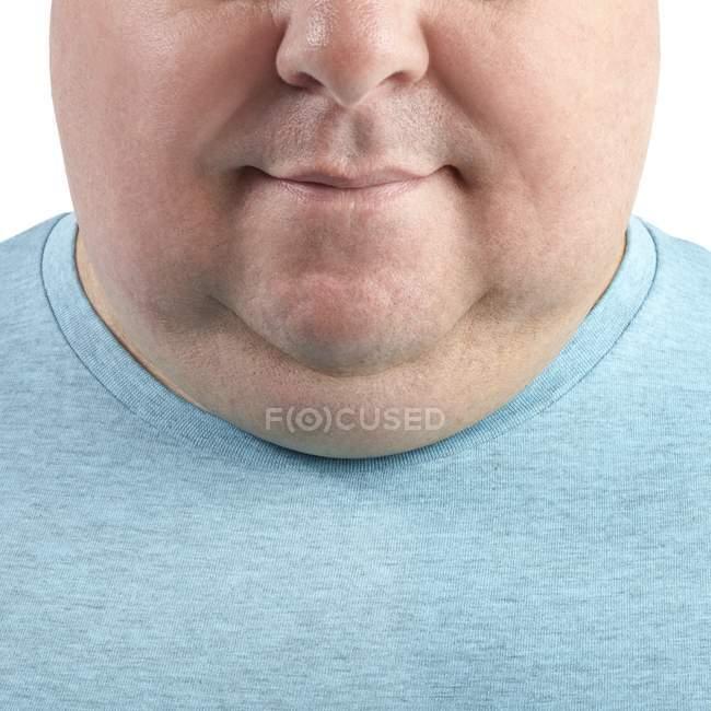 Primer plano de la barbilla y el cuello del hombre con sobrepeso, recortado - foto de stock