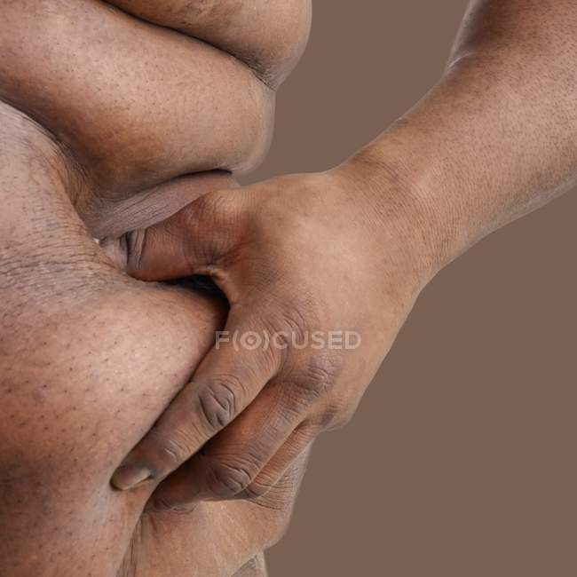 Overweight man pinching body on waist, close-up. — Stock Photo