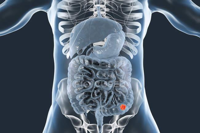 Colon cancer in human body digital illustration stock photo colon cancer in human body digital illustration ccuart Choice Image