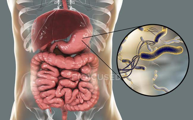 Ilustração digital de bactérias Helicobacter pylori no estômago humano . — Fotografia de Stock
