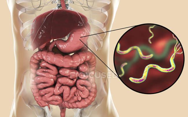 Digitale Illustration von Helicobacter pylori Bakterien im menschlichen Magen. — Stockfoto