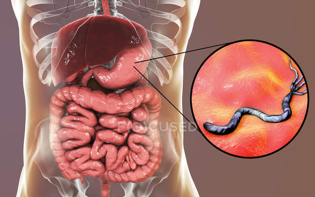 Digital illustration of Helicobacter pylori bacteria in human stomach. — Stock Photo