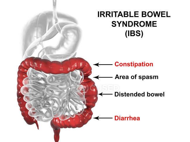 Illustrations numériques du système digestif, souffrant du syndrome du côlon irritable — Photo de stock