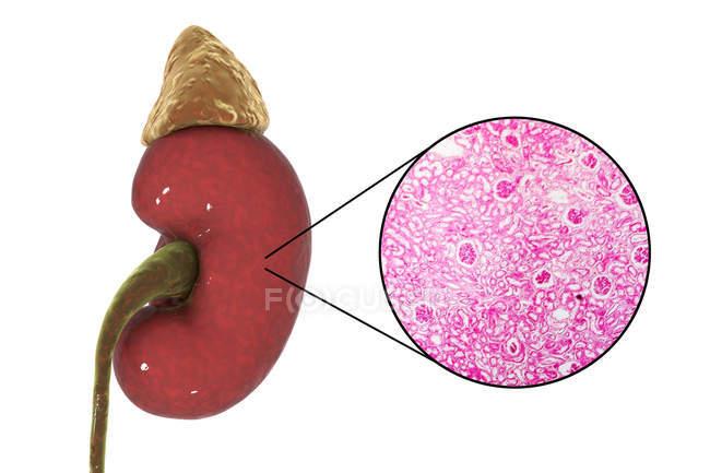 Ilustración del riñón humano y micrografía ligera de sección con glomérulo . - foto de stock