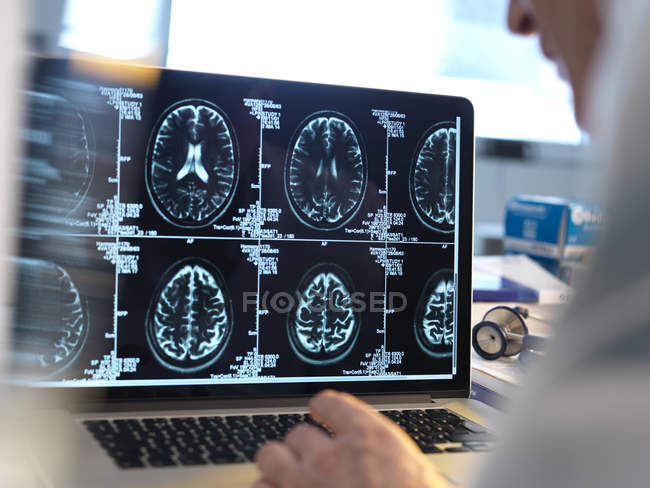 Doctor viewing brain scans on computer screen. — Stock Photo