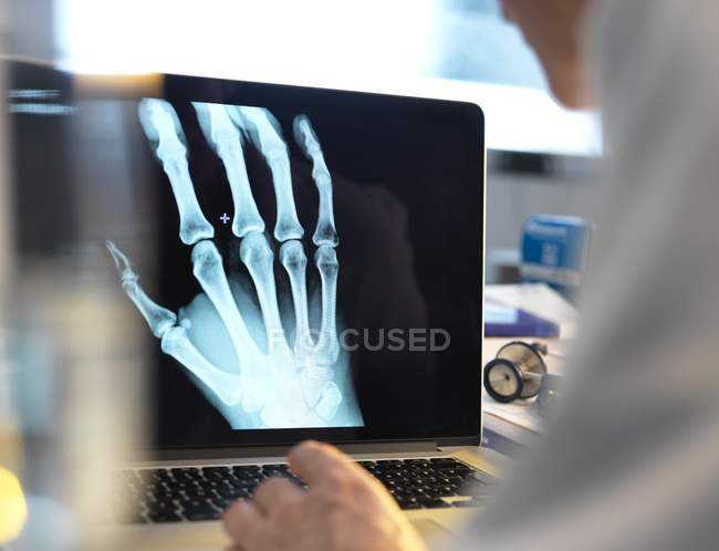 Docteur visualisation X-ray de la main sur l'écran de l'ordinateur portable . — Photo de stock