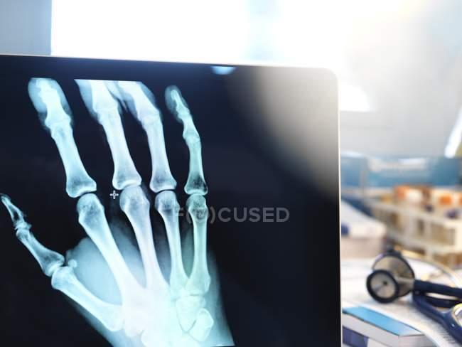 Close-up de raio-X de mão na tela do laptop . — Fotografia de Stock