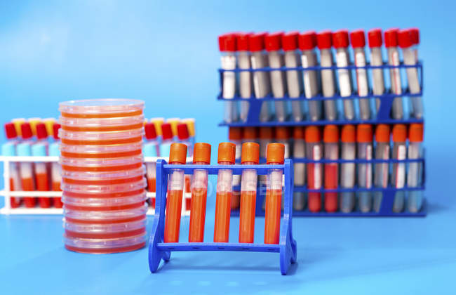 Racks of samples in test tubes and Petri dishes on laboratory table. — Stock Photo