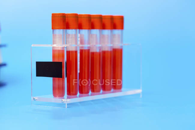 Rack of test tubes with blood samples on blue background. — Stock Photo