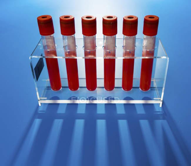 Regal mit Reagenzgläsern mit Blutproben auf blauem Hintergrund. — Stockfoto