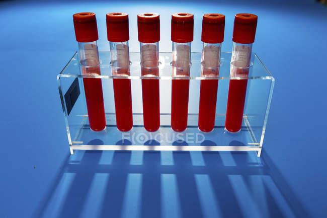 Стійки з пробірки з зразки крові на синьому фоні. — стокове фото