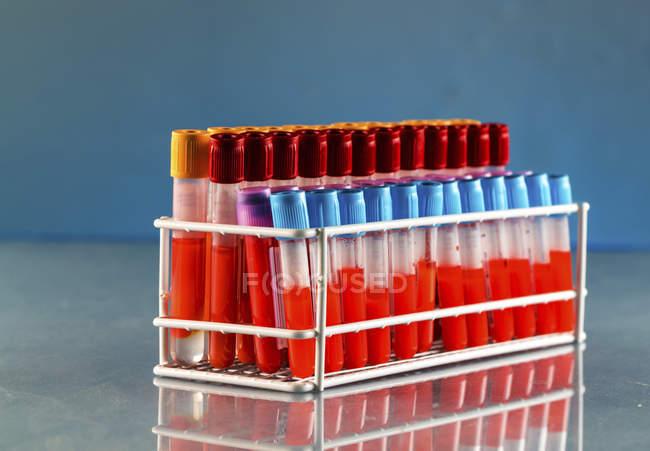 Support d'éprouvettes avec échantillons de sang en laboratoire . — Photo de stock