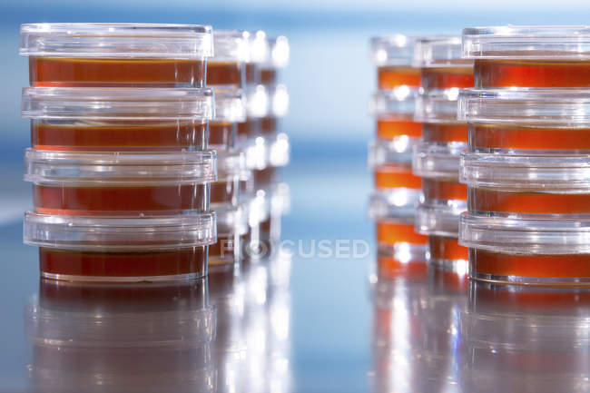 Stacked Petri dishes with blood agar on plain background. — Stock Photo