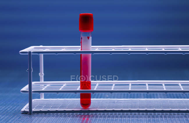 Single test tube with blood sample in rack. — Stock Photo