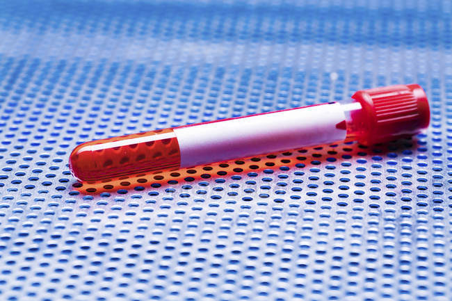 Single test tube with blood sample. — Stock Photo