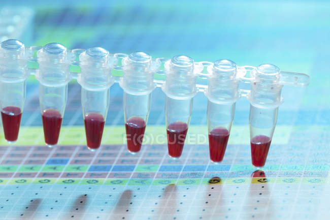 Close-up of microcentrifuge tubes with blood samples. — Stock Photo