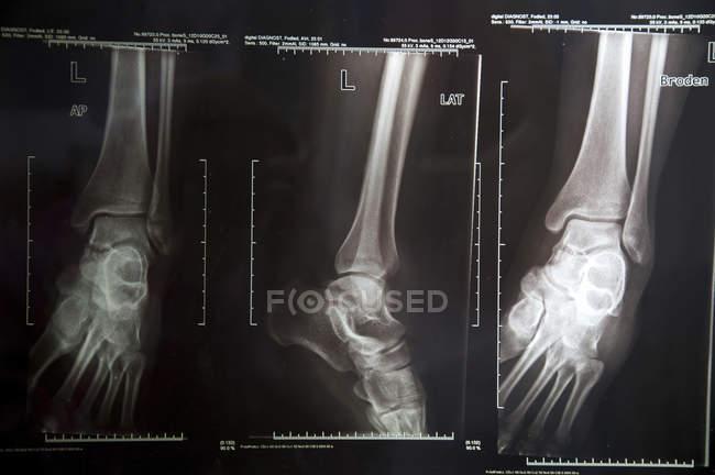 Primer plano de los rayos X de las piernas inferiores . - foto de stock