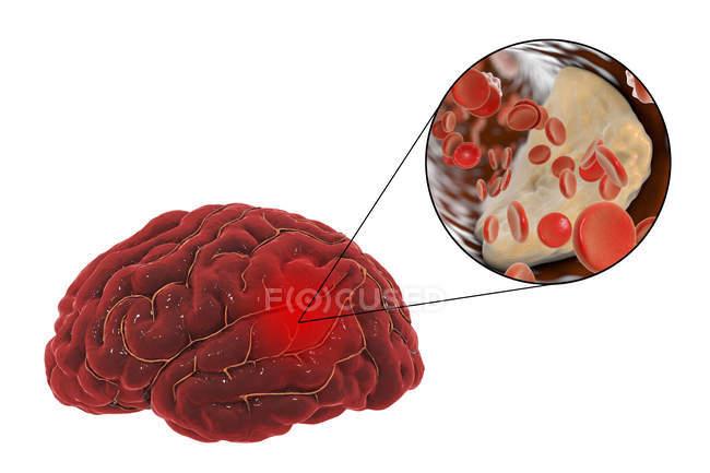 Illustration de blocage artériel provoquant l'accident vasculaire cérébral en raison de l'athérosclérose. — Photo de stock