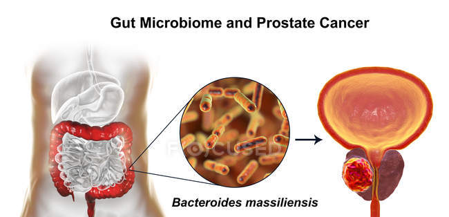 Conceptual illustration of association of Bacteroides massiliensis bacteria in intestine with prostate cancer development. — Stock Photo