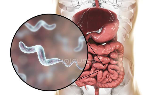 Человека, кишечника и макро Campylobacter jejuni бактерий, вызывая Кампилобактериоз, концептуальные иллюстрации. — стоковое фото