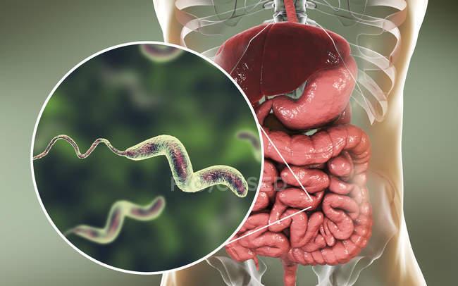 Intestin humain et gros plan de la bactérie Campylobacter jejuni causant la campylobactériose, illustration conceptuelle . — Photo de stock