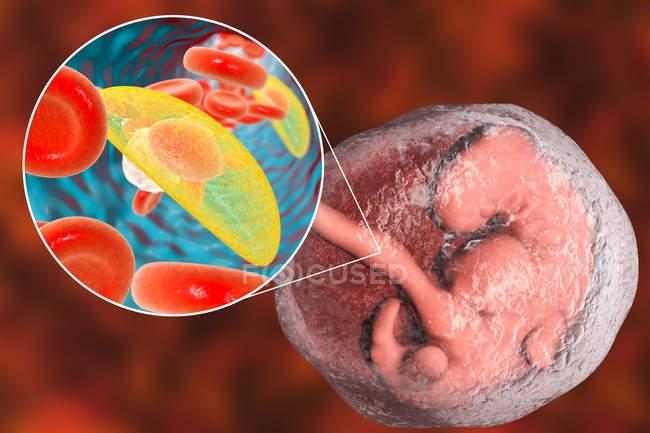 Embryon humain et gros plan des parasites Toxoplasma gondii, illustration conceptuelle . — Photo de stock