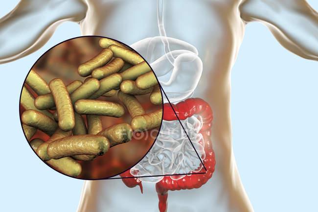 Sistema digestivo humano com infecção por Shigelose e close-up de bactérias Shigella . — Fotografia de Stock