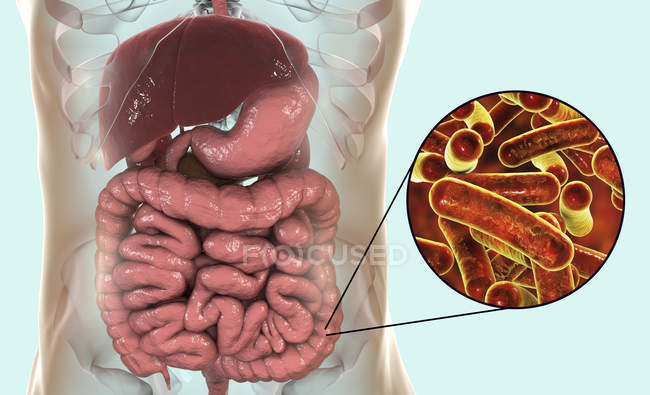 Human digestive system with Shigellosis infection and close-up of Shigella bacteria. — Stock Photo