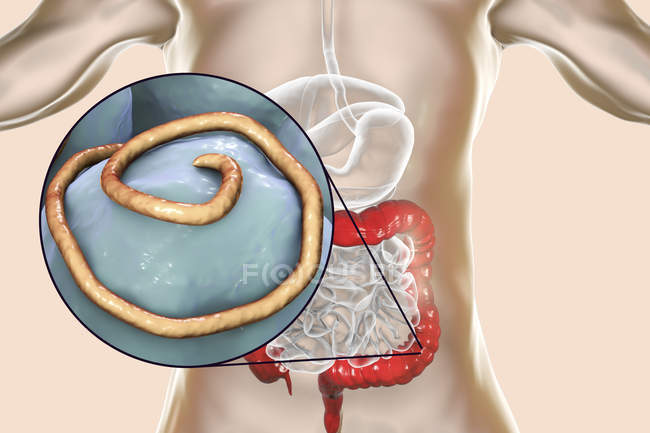 Ilustración digital de lombriz intestinal en el intestino humano. - foto de stock