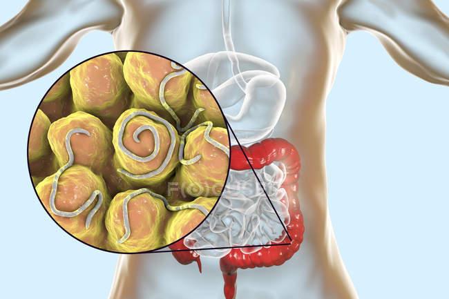 Ilustración digital de múltiples triquinas en intestino humano. - foto de stock