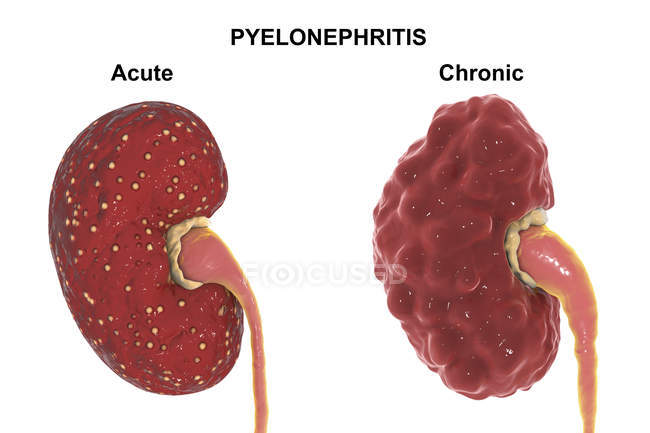 Comparaison de l'anatomie globale de la pyélonéphrite aiguë et chronique, illustration . — Photo de stock