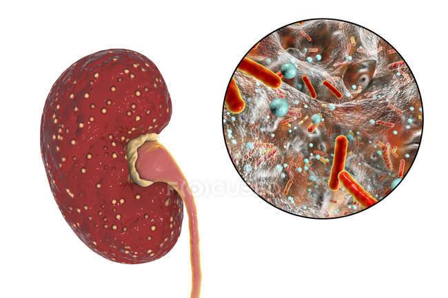 Ilustración de abscesos amarillos en el riñón y primer plano de la bacteria Escherichia . - foto de stock