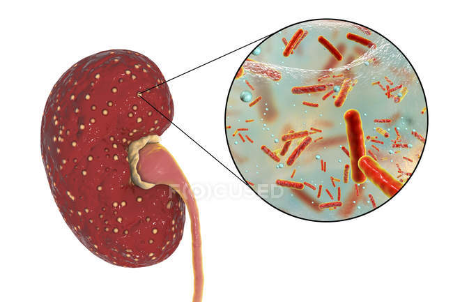 Ilustração de abscessos amarelos no rim e close-up de bactérias Enterococcus . — Fotografia de Stock