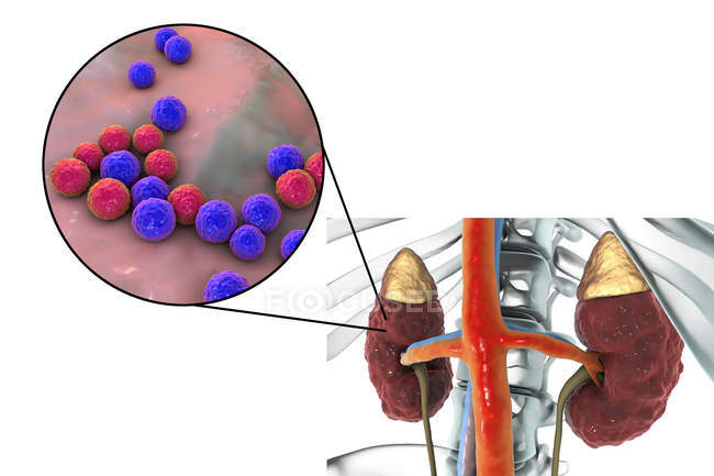 Ilustración de la superficie cortical cicatrizada irregular del riñón y primer plano de la bacteria Enterococcus . - foto de stock