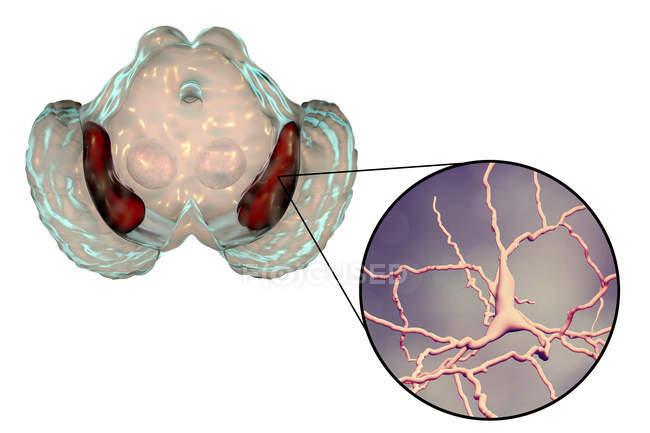 Obras de arte de sustancia negra sana y primer plano de neuronas dopaminérgicas del cerebro humano . - foto de stock