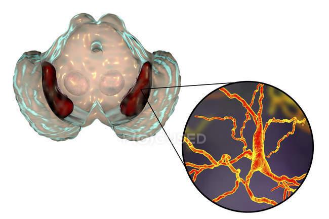 Création de substantia nigra sains et gros plan des neurones dopaminergiques du cerveau humain . — Photo de stock