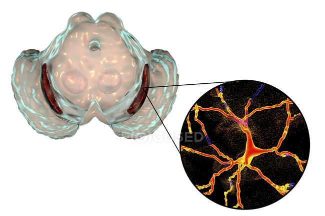 Illustrazione di degenerati nigra di substantia e neuroni dopaminergici nella malattia di Parkinson. — Foto stock