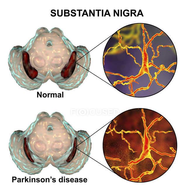 Illustration de substantia nigra sains et dégénérés du cerveau humain avec des neurones dopaminergiques . — Photo de stock