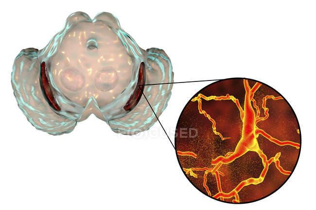 Ilustración de sustancia negra degenerada y neuronas dopaminérgicas en la enfermedad de Parkinsons . - foto de stock