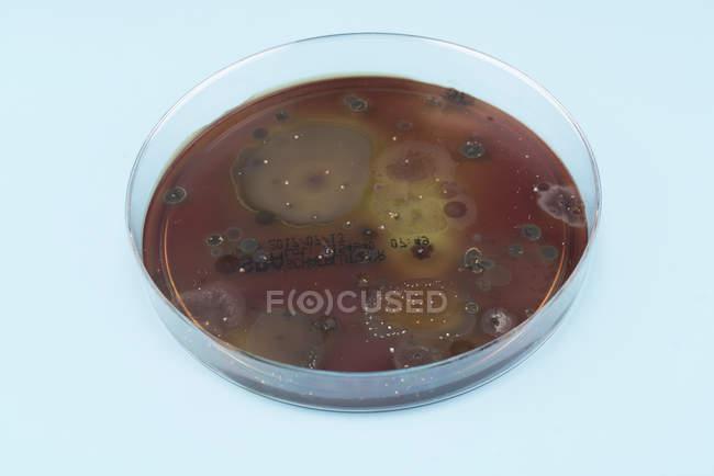 Микробы, растущих на плиты агара на синем фоне. — стоковое фото