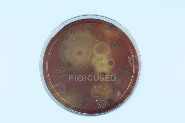 Top view of microbes growing on agar plate on plain background. — Stock Photo